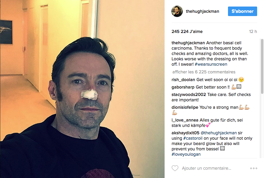 Hugh Jackman, son nouveau combat face au cancer